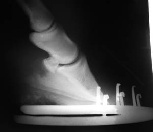 Röntgenaufnahme eines beschlagenen Hufes, auf dem man den üblichen Fehler sieht: Die Trachten des Hufes sind abnormal hoch und als Ergebnis davon ist die Sohle des Hufbeins nicht bodenparallel, was für eine ordnungsgemäße Gewichtsverteilung auf die Hufkapsel notwendig wäre. Demnach ist die sensible Lamellenschicht der Hufwand vermehrter Zerrung ausgesetztl. Dieses 19 Jahre alte Pferd litt unter erheblicher Laminitis und Hufbeinrotation mit Separation, wobei die Hufbeinspitze die Hornsohle durchbrochen hatte. Eine Barhufbehandlung hat das Pferd wieder gesund gemacht. © Claudia Garner