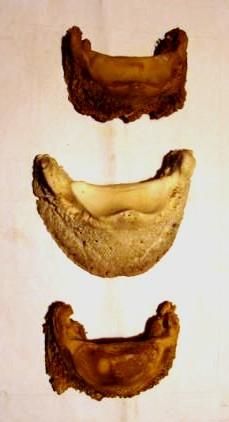 Deformationen (Abbau) des Hufbeins nach langjährigem Hufbeschlag. Vergleiche die Formen der Knochen oben und unten mit der normalen Hufbeinform in der Mitte. © Foto: Hilturd Strasser